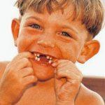 Carne de dentista
